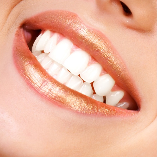 Adhesives Developed To Prevent Bracket Stains On Teeth