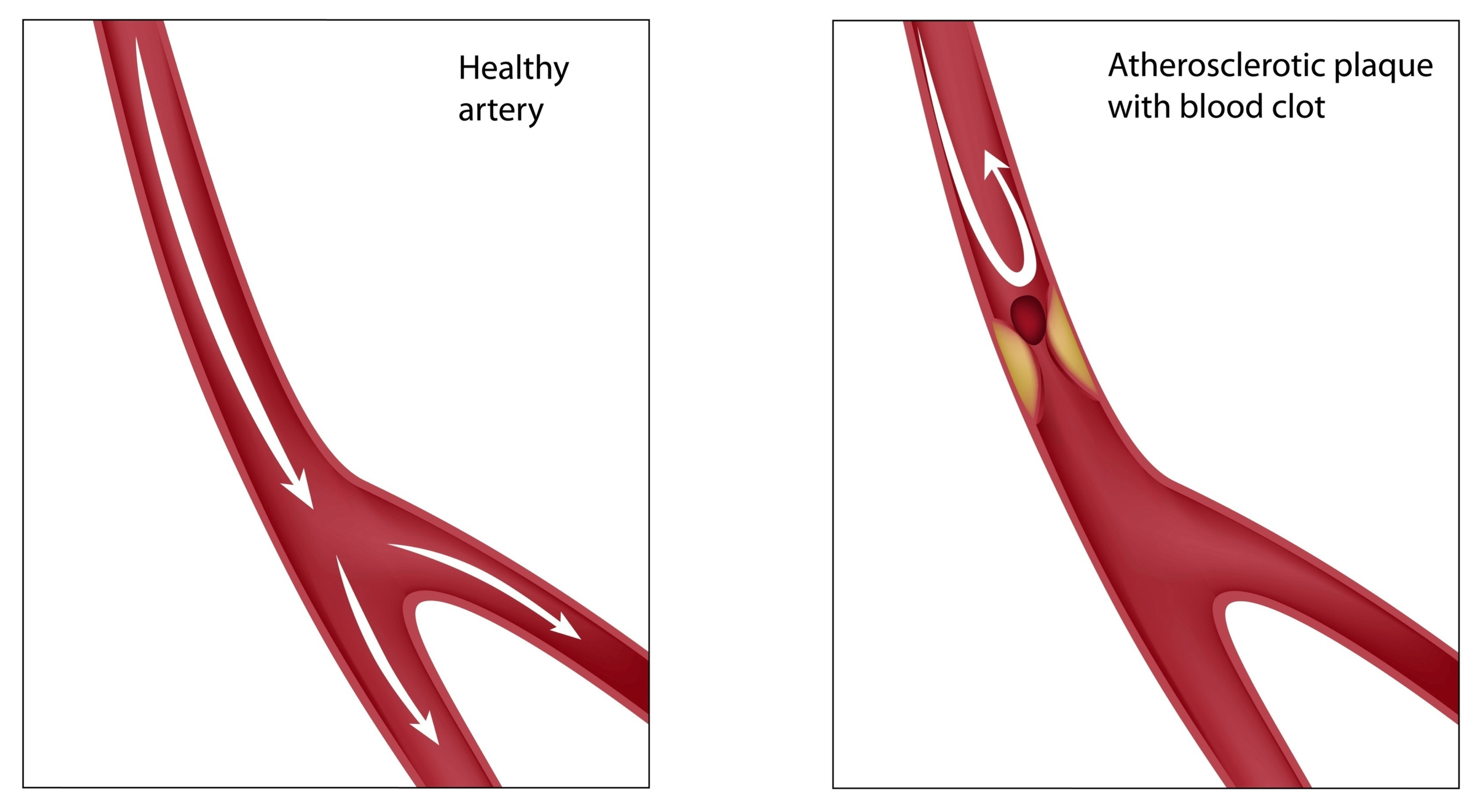 how to clear blocked arteries veins in your legs naturally