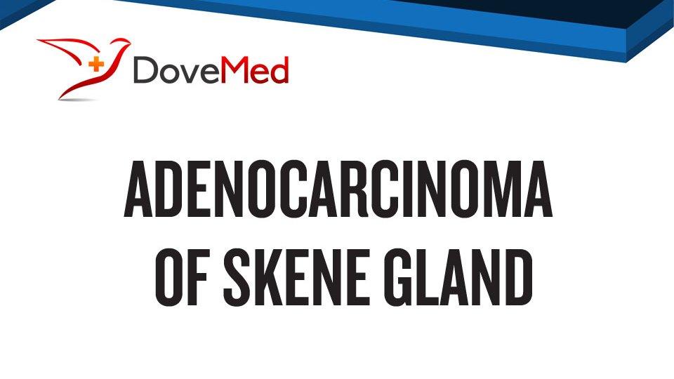Adenocarcinoma Of Skene Gland