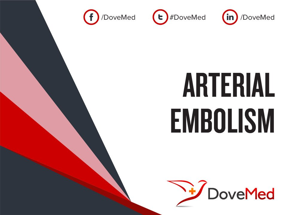 Arterial Embolism Is The Sudden Interruption Of Blood Flow, Due To A Blood  Clot Adhering To The Wall Of An Artery.