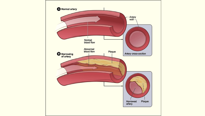Atherosclerosis - The illustration shows a normal artery with normal blood flow (figure A) and an artery containing plaque buildup (figure B).