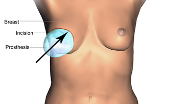 Illustration of Breast Reconstruction Prosthesis.