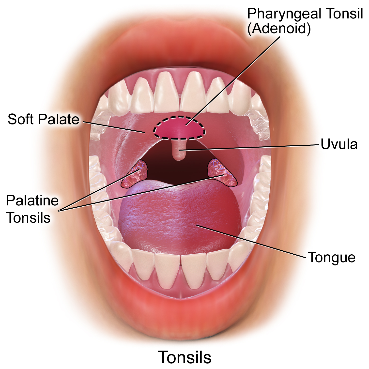Tonsil Removal (Tonsillectomy)