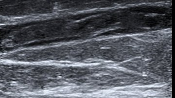 Ultrasound image depicting a large large trhombosis (potetnially one amenable to catether related thrombolsyis).