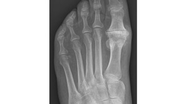X-ray of the foot showing Hallux rigidus.