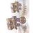 Illustration of Spinal disc herniation.