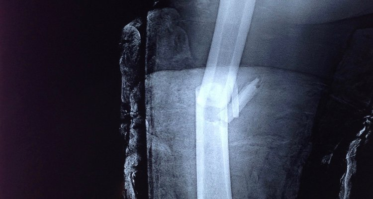 X-ray of the leg showing a fracture of the femoral shaft.