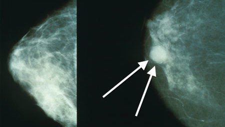 Study In Early Stage Breast Cancer Shows That Even Small Tumors Can Be Aggressive