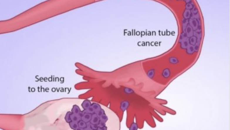 Scientists Track Ovarian Cancers To Site Of Origin: Fallopian Tubes