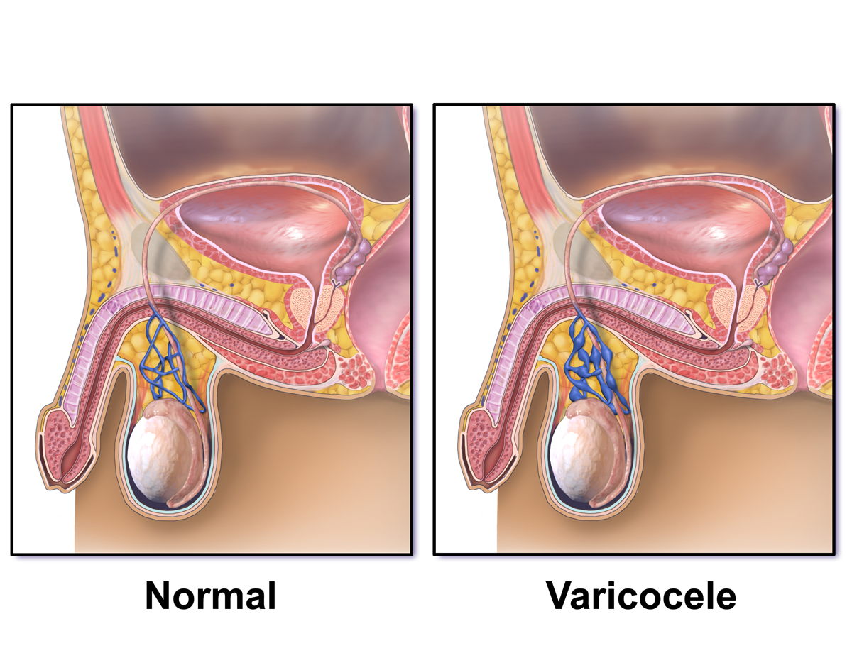 Varices in scrotum and low sperm count