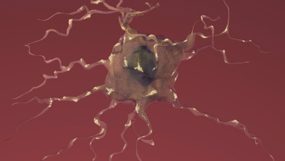 New Guidelines On Clinical Trial Design For Patients With Brain Metastases