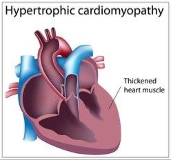 Hypertrophic cardiomyopathy.