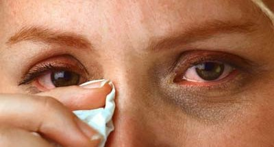 Congestion and watering of eyes are common symptoms.