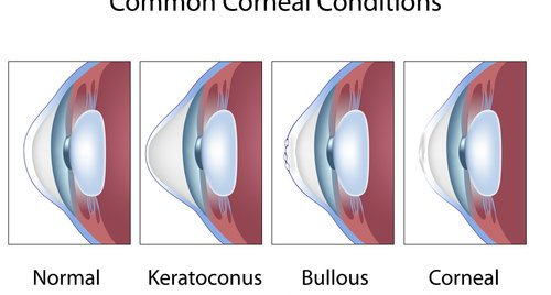 Common corneal conditions, eye cornea diseases