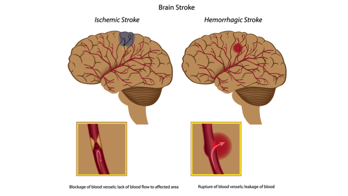 Illustration showing Ischemic and Hemorrhagic types of brain stroke.