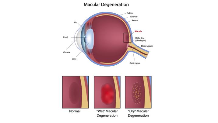 Eye condition : macular degeneration.