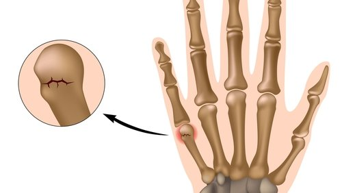 A Boxer's fracture is the most common type of finger fracture.