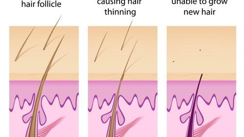 Hair loss process.