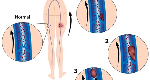 Illustration showing the initial formation of deep vein thrombosis of legs and subsequent formation of a thromboembolus ( causing thromboembolism).