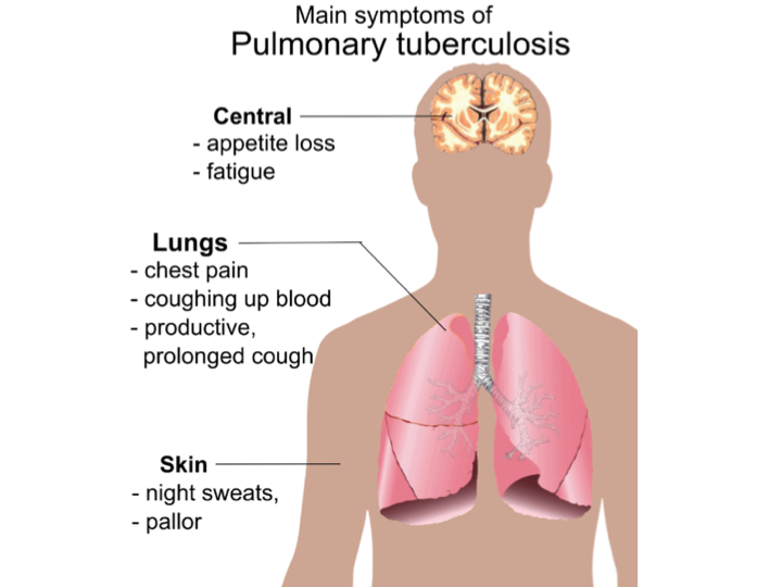 tuberculosis infectious disease and health care Tuberculosis (tb) is an infectious disease usually caused by the bacterium mycobacterium tuberculosis and health-care providers serving these patients.
