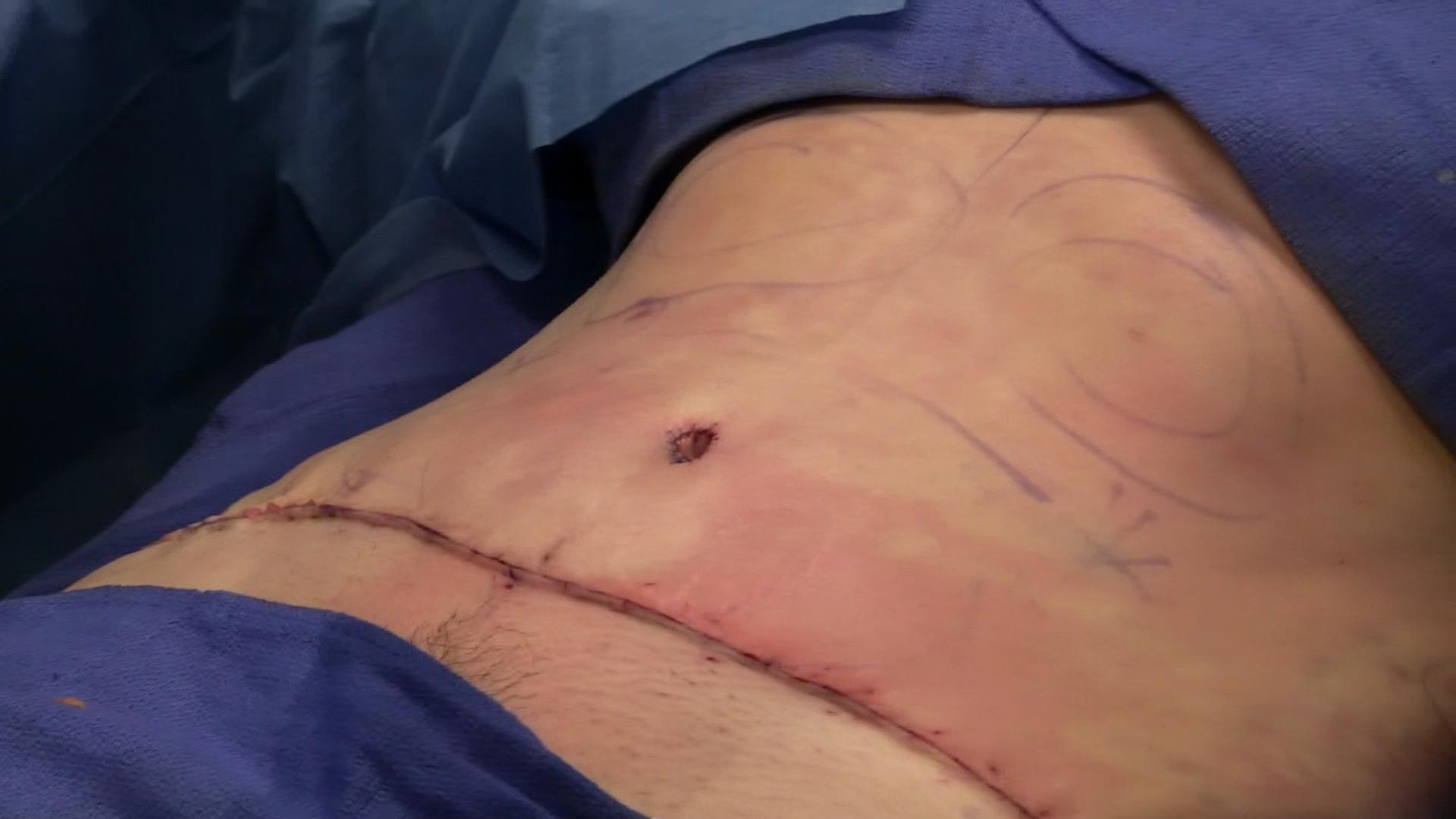 abdominoplasty surgery