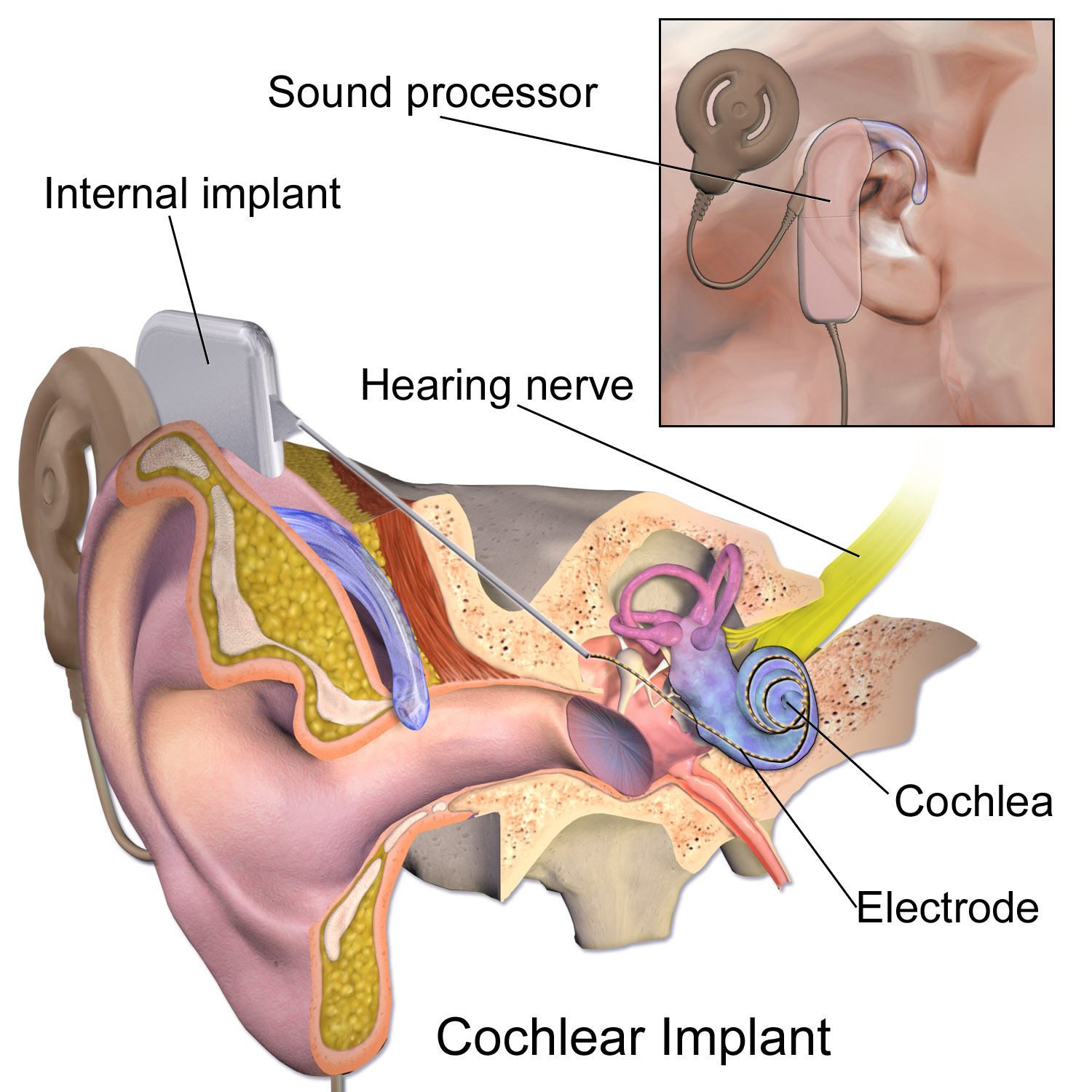 Cochlearimplantg