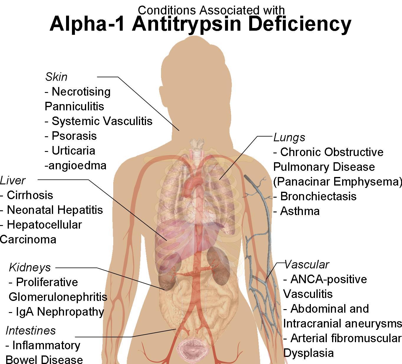 Alpha 1 antitrypsin deficiency ccuart Images