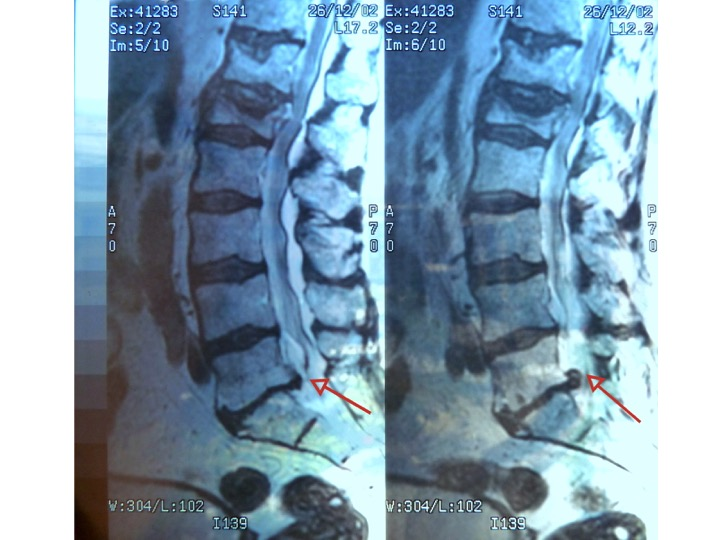 How well do you know Lumbar Spinal Stenosis