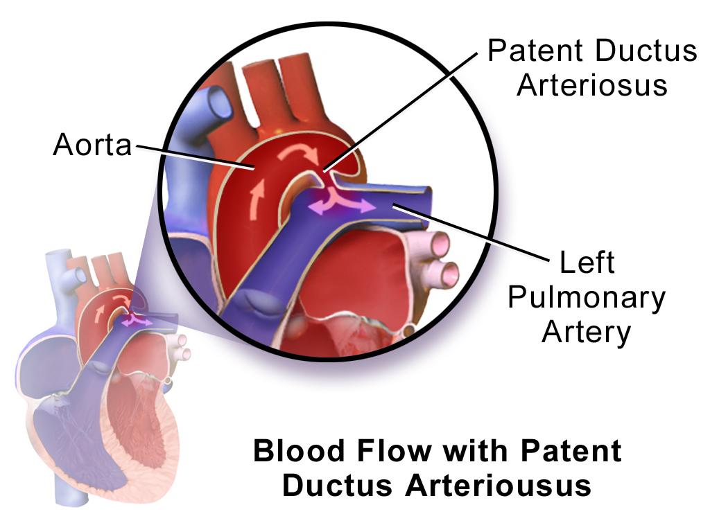 Patent Ductus Arteriosus Pda