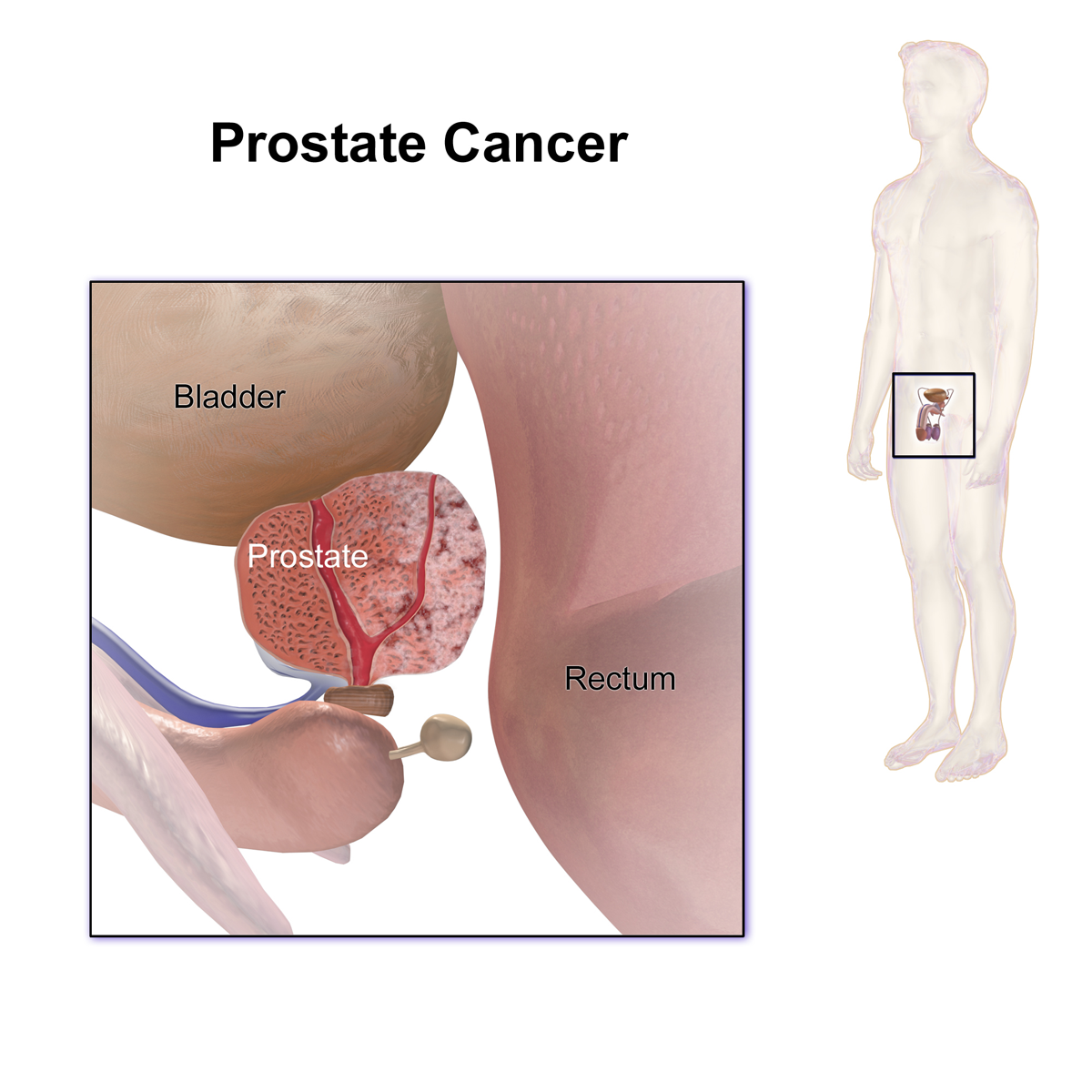 the main aspects of cancer of the prostrate Hollings cancer center is recognized as a regional leader in treating genitourinary cancers including cancer center (main) aspects of having cancer.