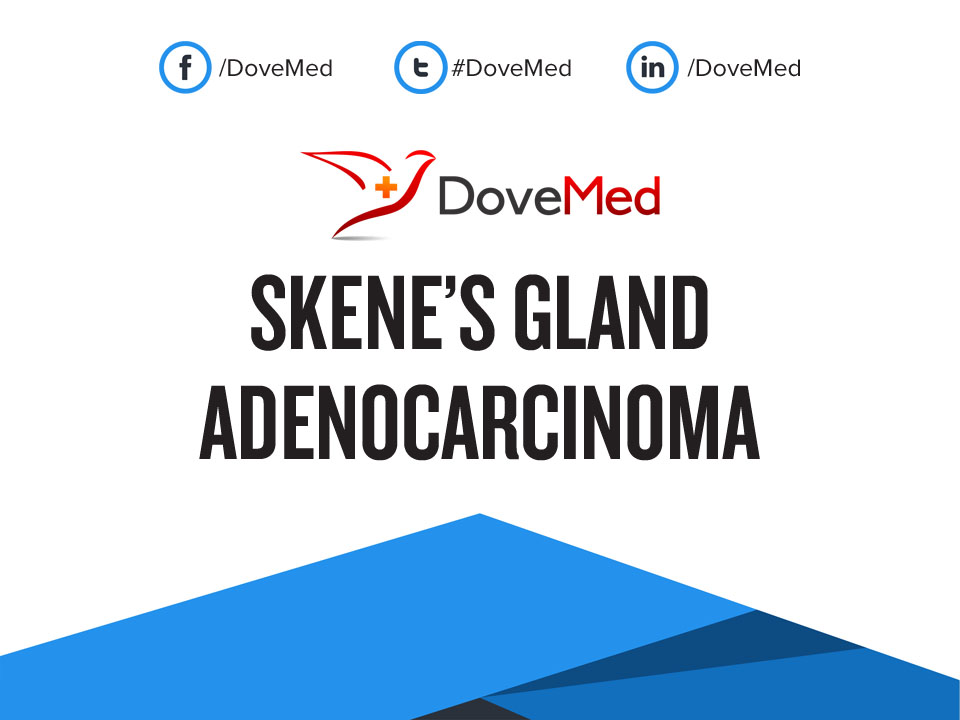 Skene U2019s Gland Adenocarcinoma